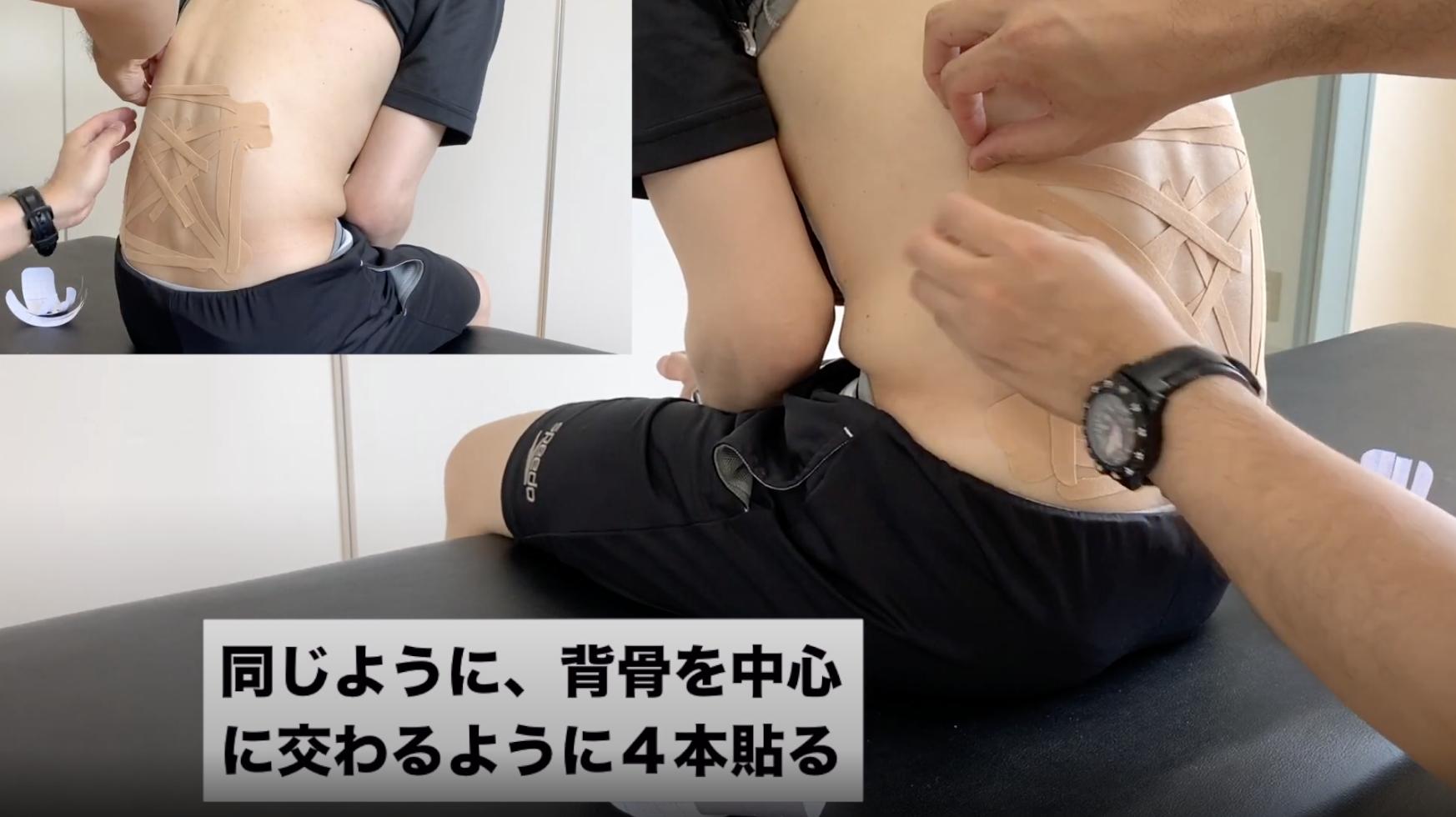 キネシオテープ:腰痛サポート